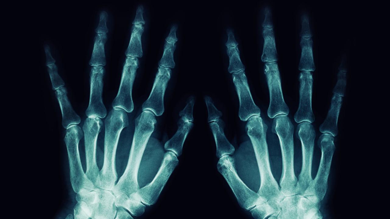 """Radiología Convencional o Rayos X"""""""