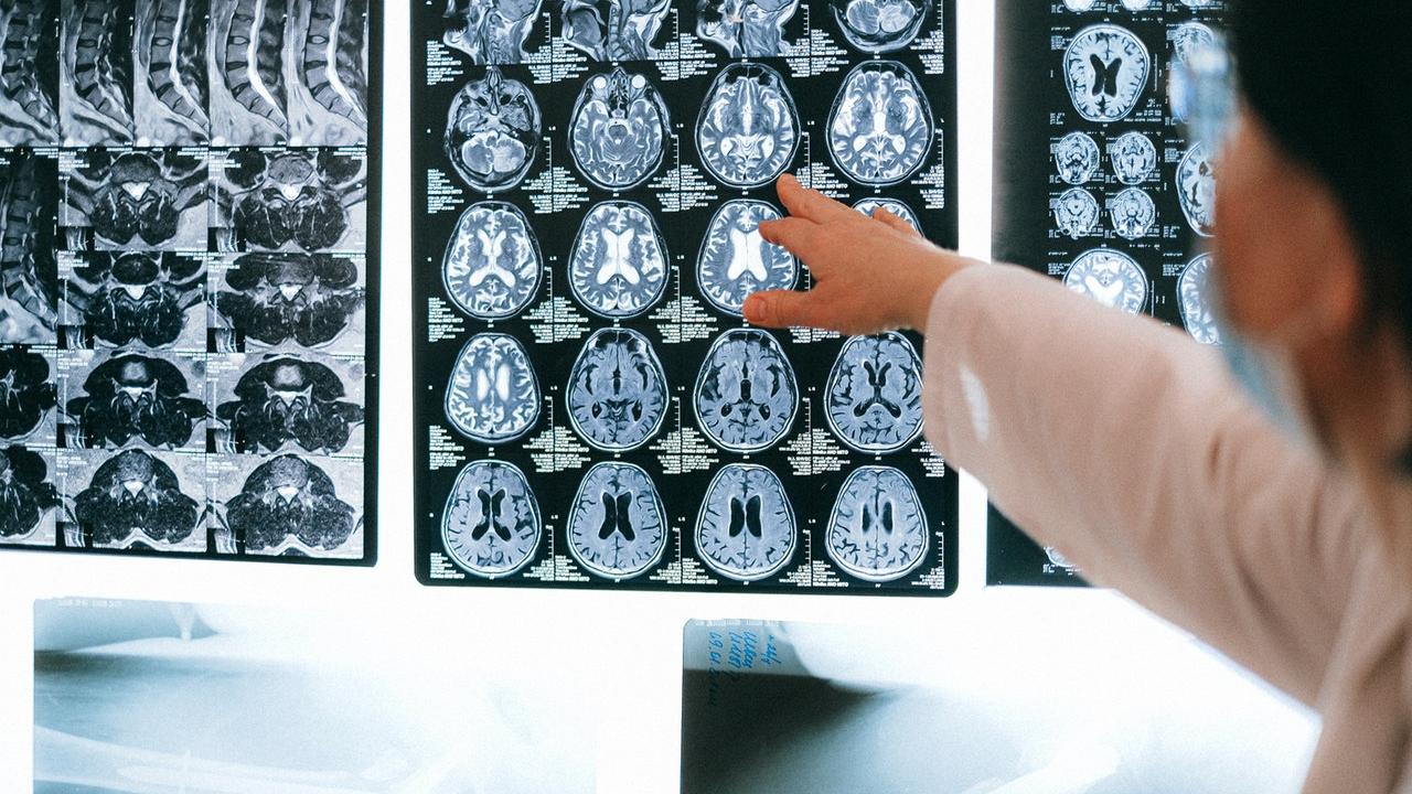 Teleradiología